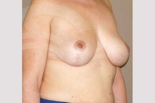 Breast Lift Inverse-T Scar after side