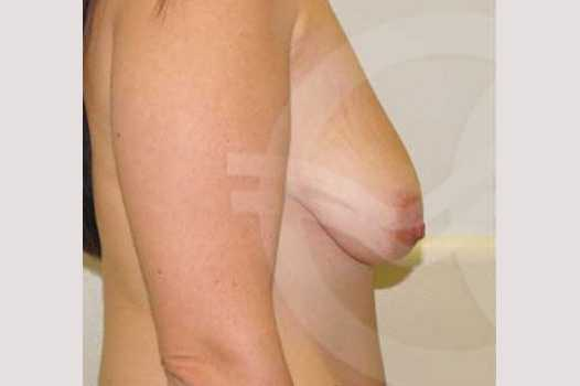 Breast Lift Inverse-T Scar before profile