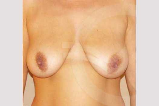 Breast Lift Uplift with 335cc Anatomic Implants before forntal
