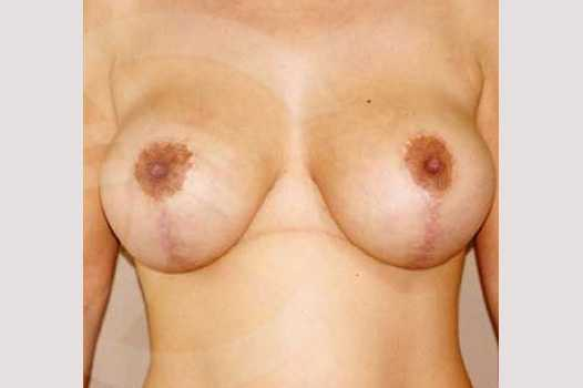 Breast Lift Uplift with 335cc Anatomic Implants after frontal
