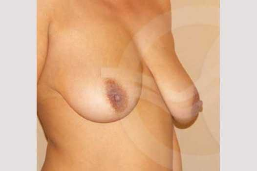 Breast Lift Uplift with 335cc Anatomic Implants before side