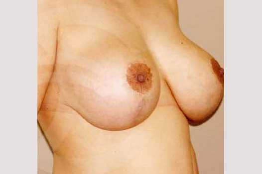 Breast Lift Uplift with 335cc Anatomic Implants after side