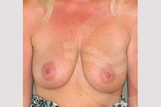 Breast Lift Mastopexy with 350cc Implants before forntal