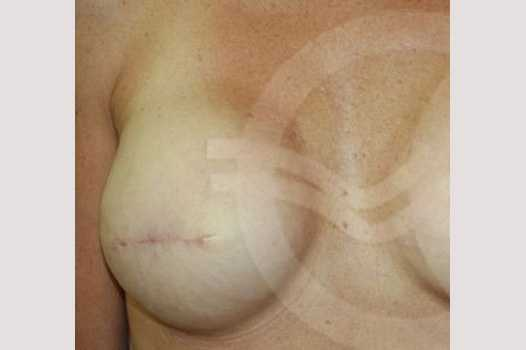 Breast Reconstruction AREOLAR PIGMENTATION before forntal