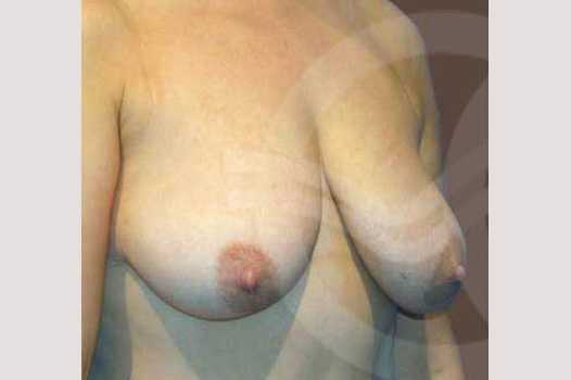 Breast Reconstruction BREAST TISSUE LOSS before forntal