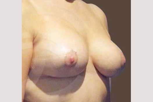 Breast Reconstruction BREAST TISSUE LOSS after frontal