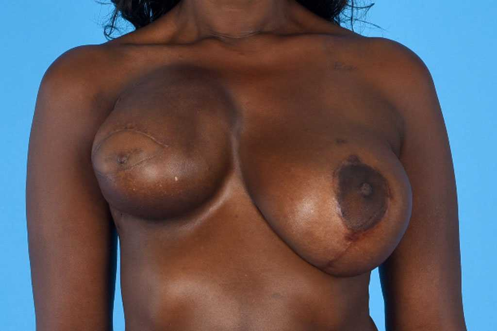 Breast Reconstruction Reconstructive Breast Surgery before forntal