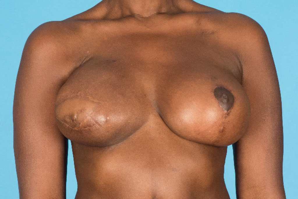 Breast Reconstruction Reconstructive Breast Surgery after frontal