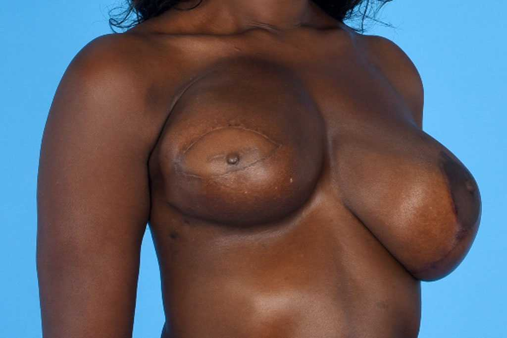 Breast Reconstruction Reconstructive Breast Surgery before side