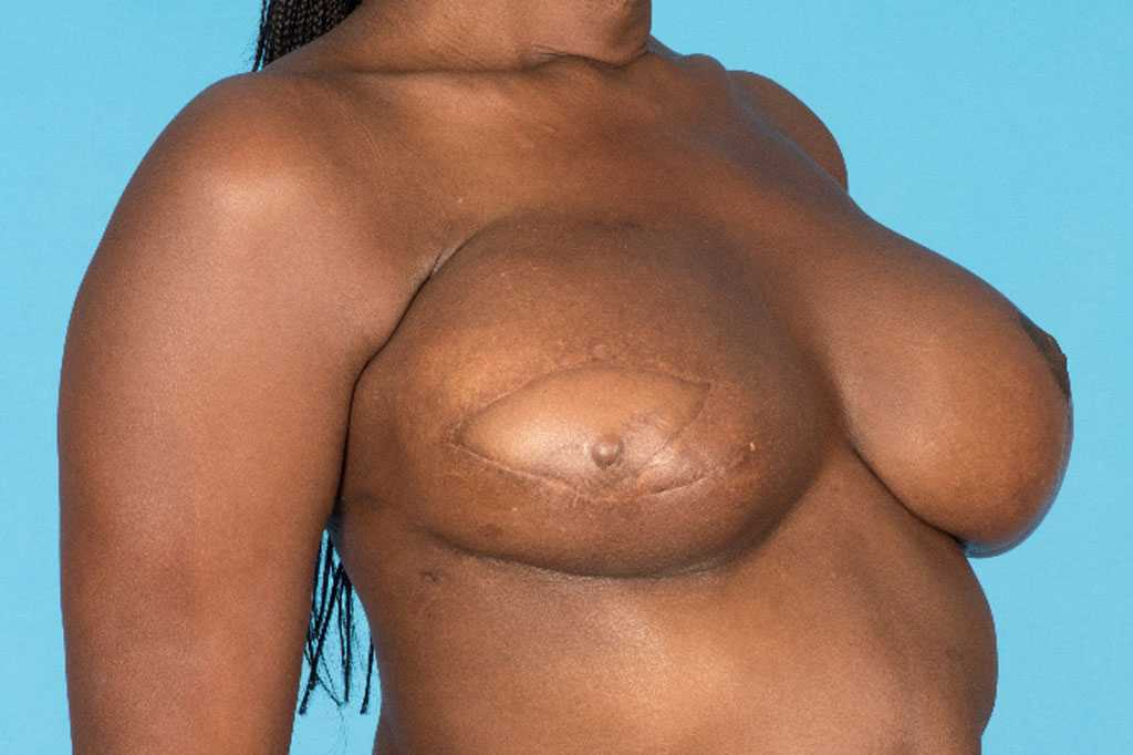 Breast Reconstruction Reconstructive Breast Surgery after side