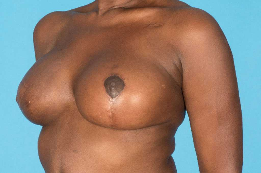 Breast Reconstruction Reconstructive Breast Surgery after profile