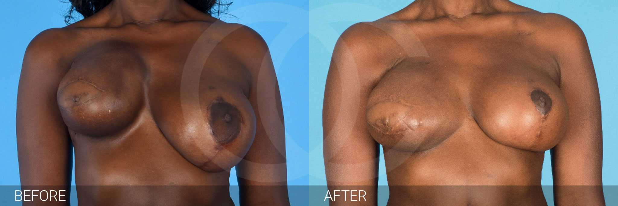 Breast Reconstruction Reconstructive Breast Surgery ante/post-op I