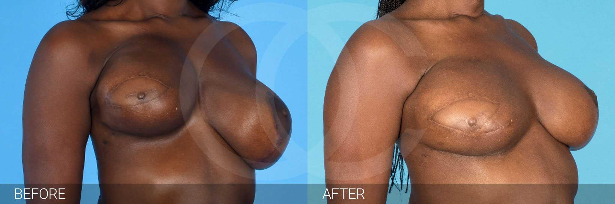Breast Reconstruction Reconstructive Breast Surgery ante/post-op II