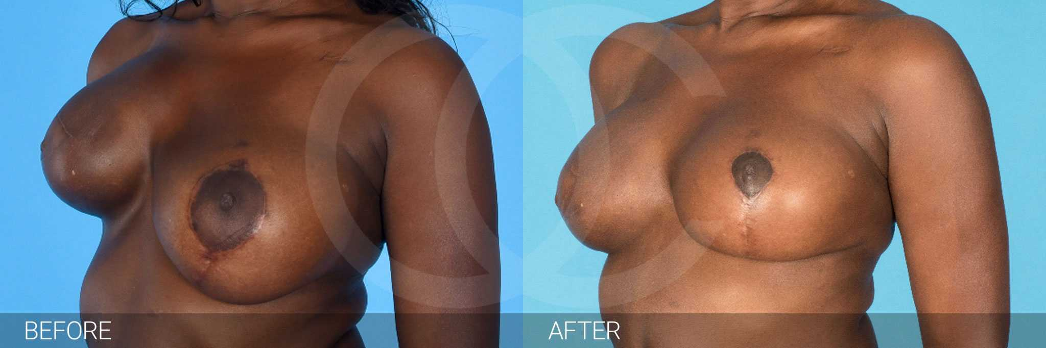 Breast Reconstruction Reconstructive Breast Surgery ante/post-op III