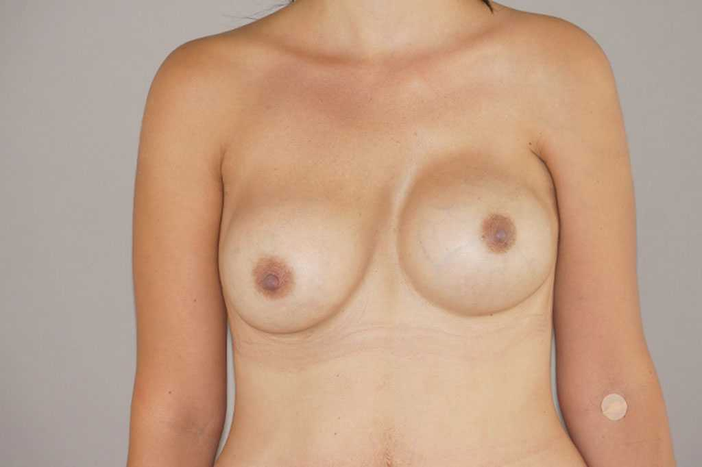 Breast Reconstruction Breast asymmetry before forntal