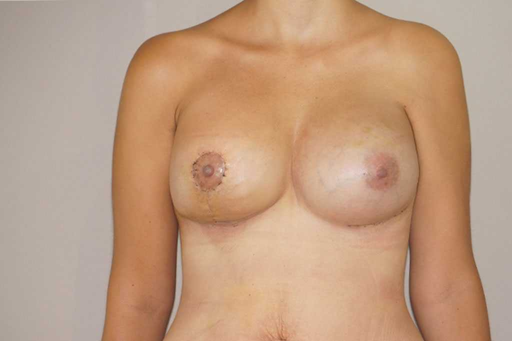 Breast Reconstruction Breast asymmetry post-op profil
