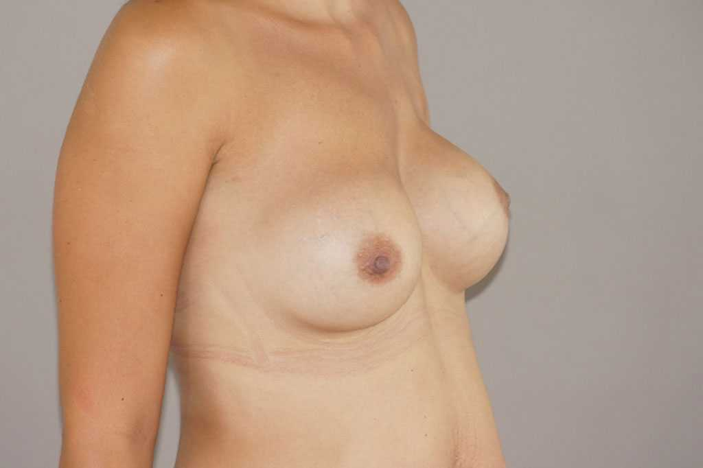Breast Reconstruction Breast asymmetry ante-op lateral
