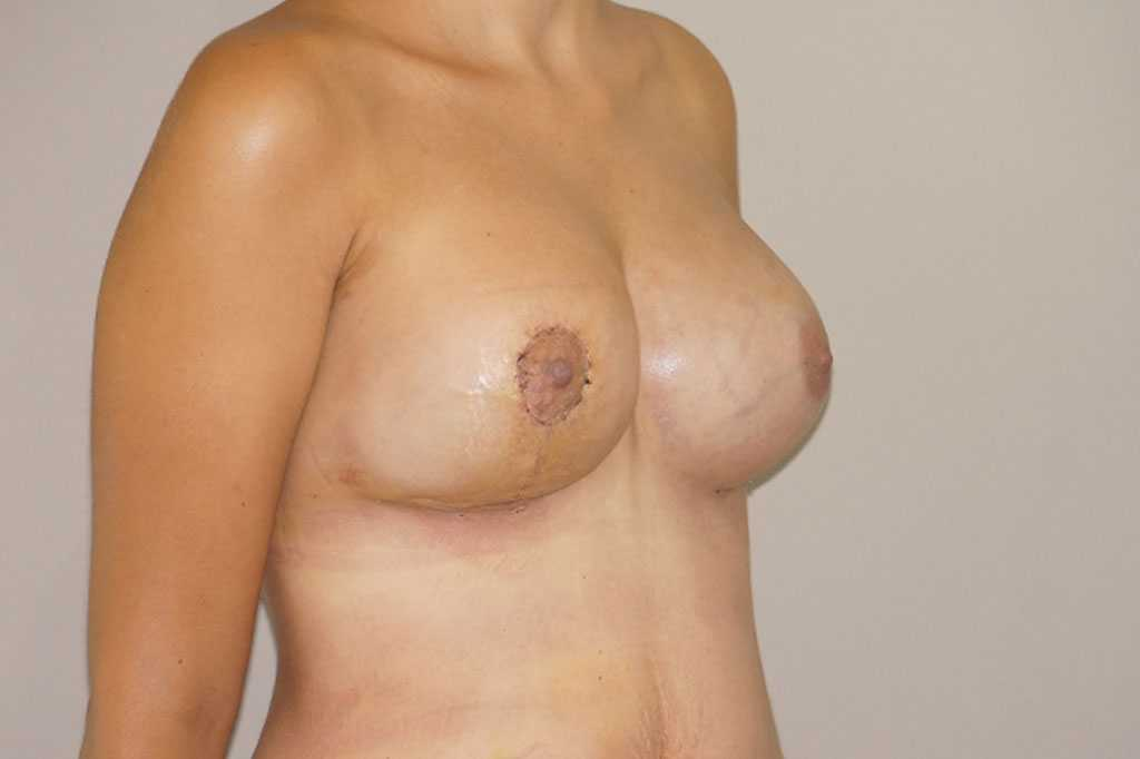 Breast Reconstruction Breast asymmetry post-op lateral