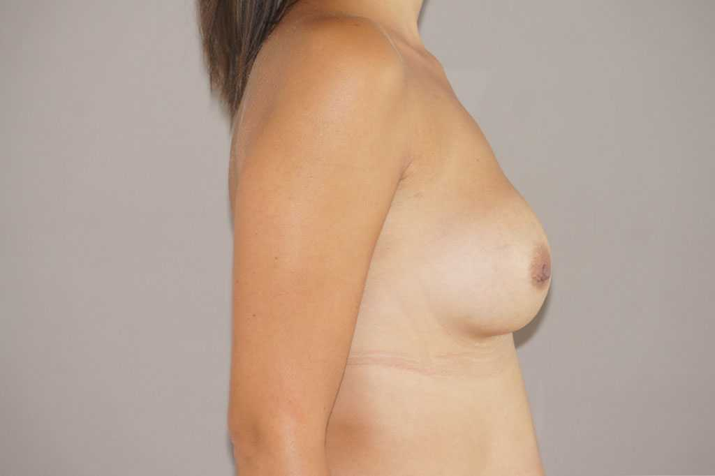 Breast Reconstruction Breast asymmetry before profile