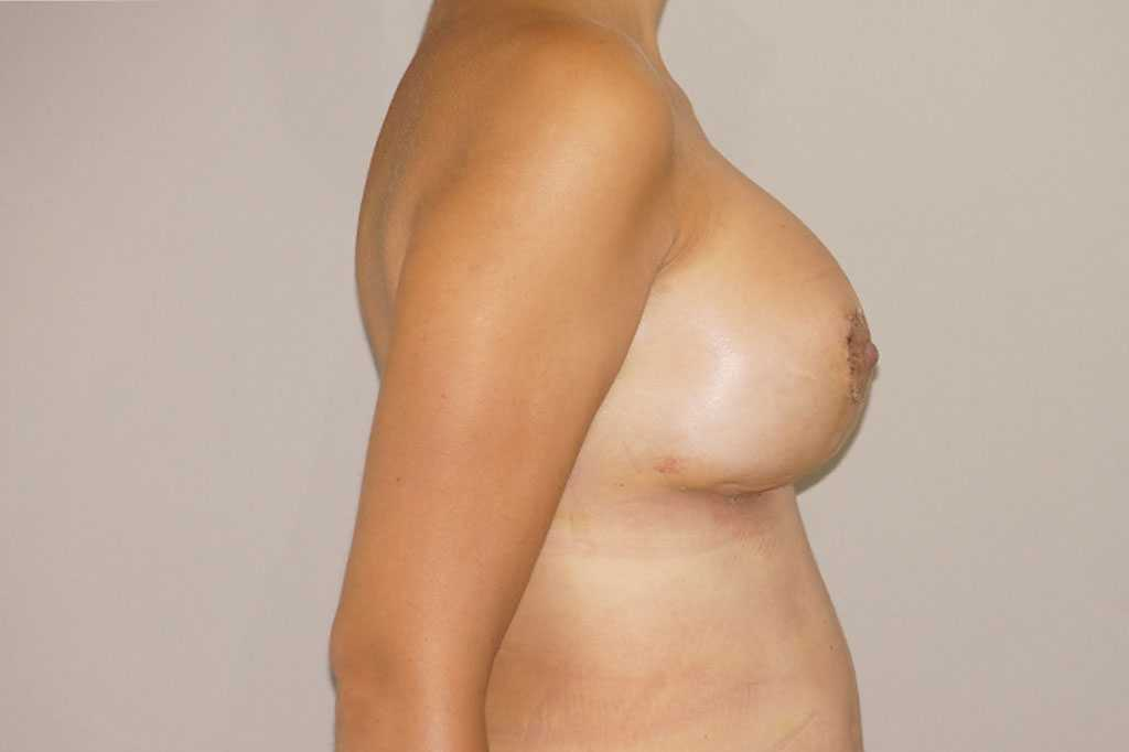 Breast Reconstruction Breast asymmetry after profile
