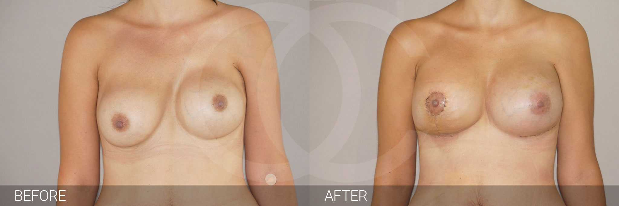 Breast Reconstruction Breast asymmetry ante/post-op I