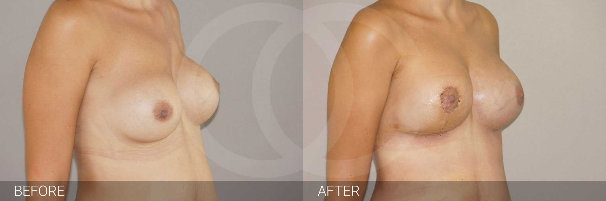 Breast Reconstruction Breast asymmetry ante/post-op II