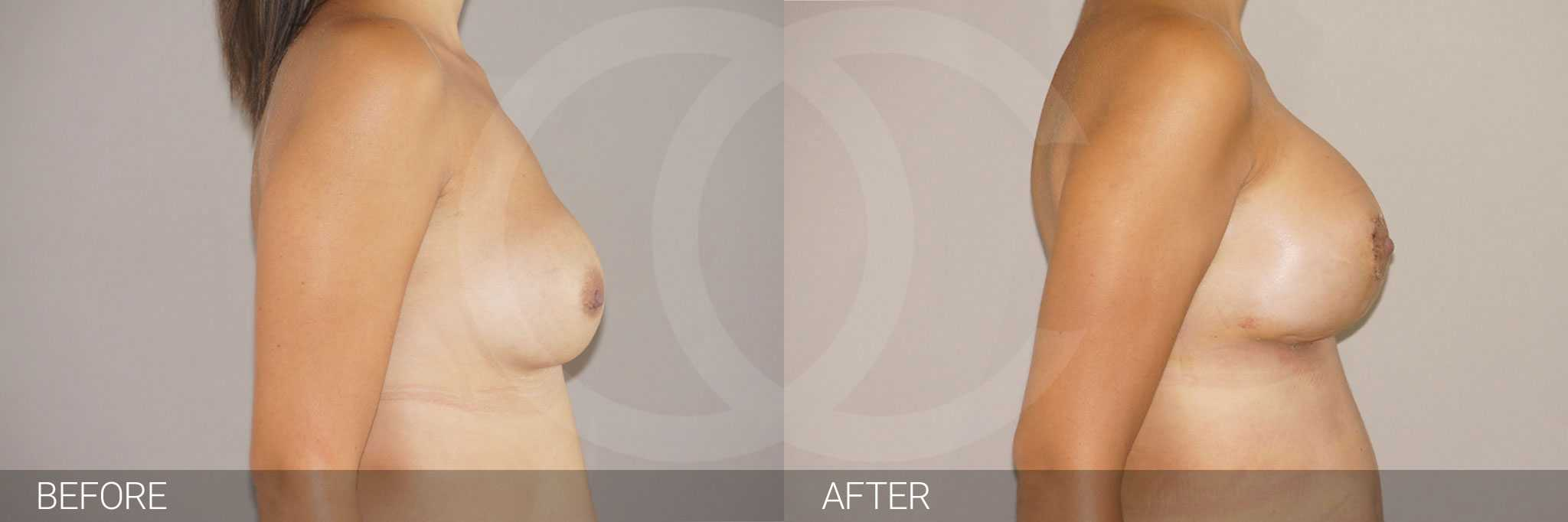Breast Reconstruction Breast asymmetry ante/post-op III
