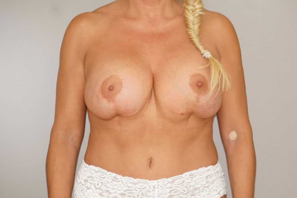 Breast Reconstruction Breast with indentation ante-op profil