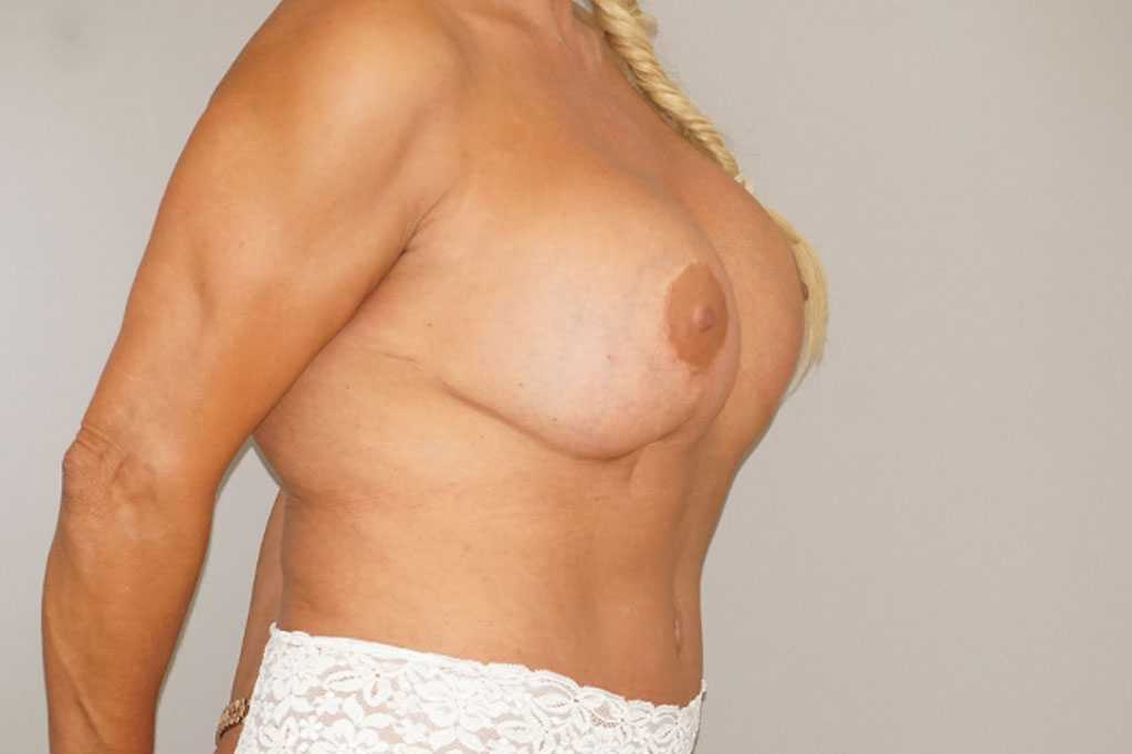 Breast Reconstruction Breast with indentation before side
