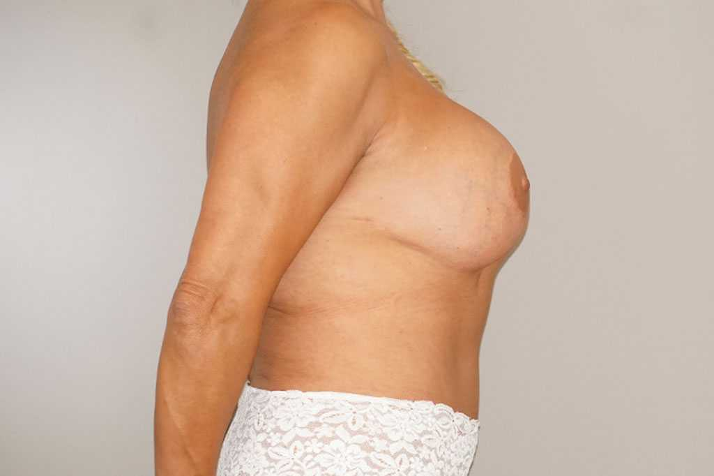 Breast Reconstruction Breast with indentation before profile