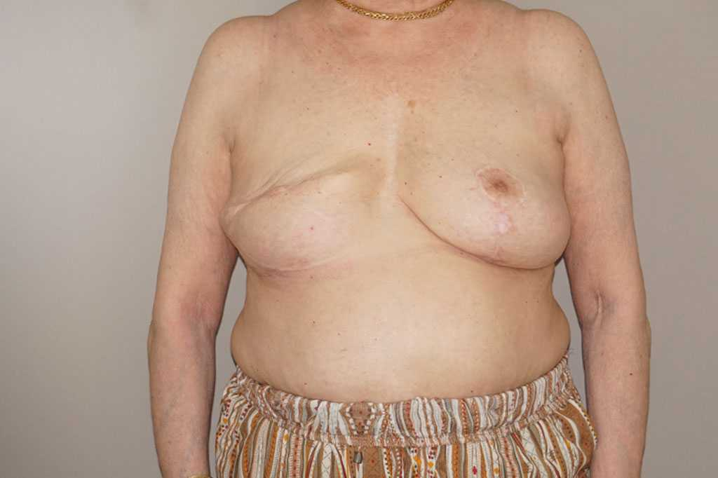Breast Reconstruction after breast cancer before forntal