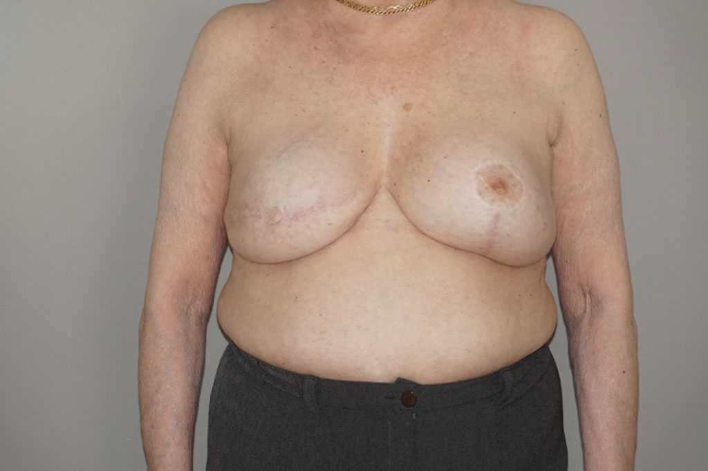 Breast Reconstruction after breast cancer after frontal
