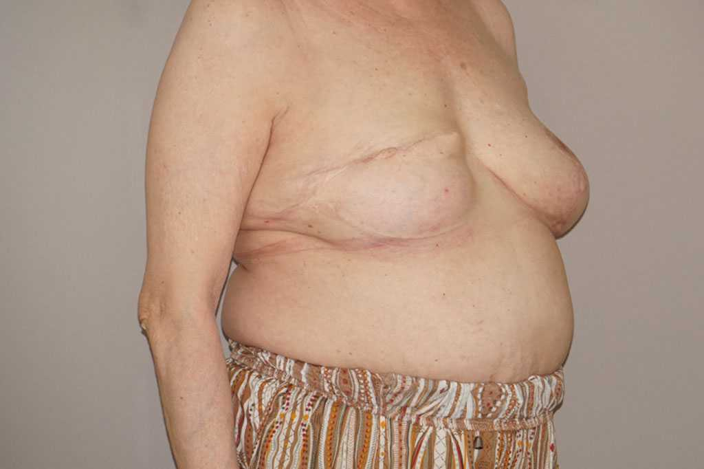 Breast Reconstruction after breast cancer ante-op lateral