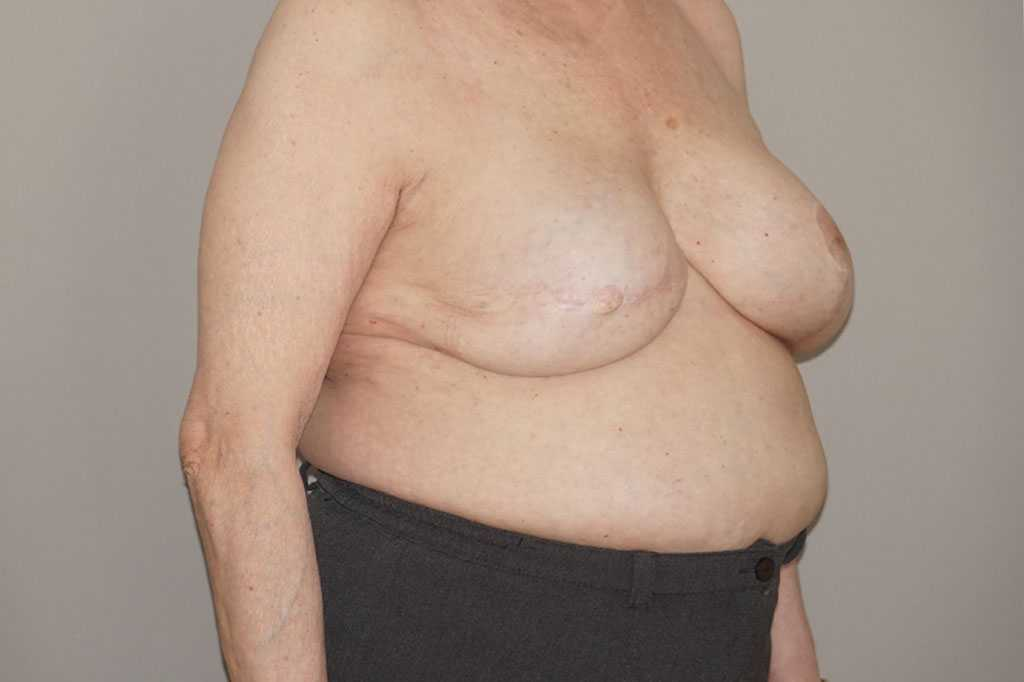 Breast Reconstruction after breast cancer post-op lateral