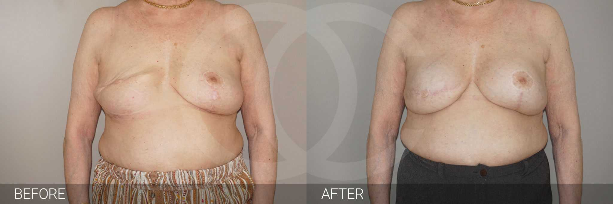 Breast Reconstruction after breast cancer ante/post-op I