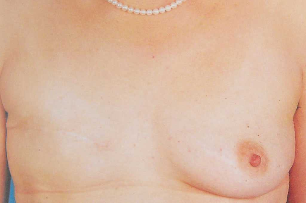 Breast Reconstruction after mastectomy before forntal