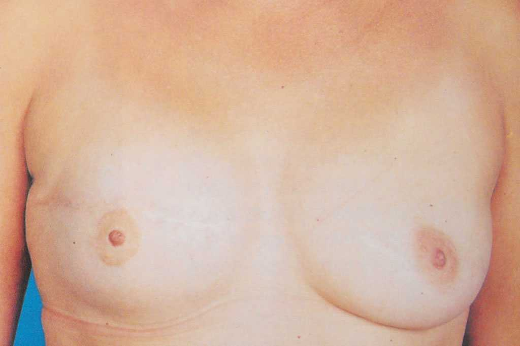 Breast Reconstruction  after frontal