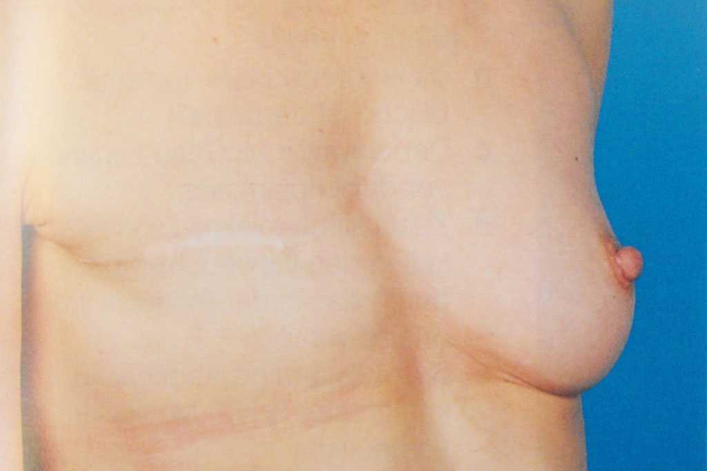 Breast Reconstruction after mastectomy before side