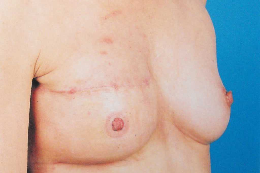 Breast Reconstruction after mastectomy after side