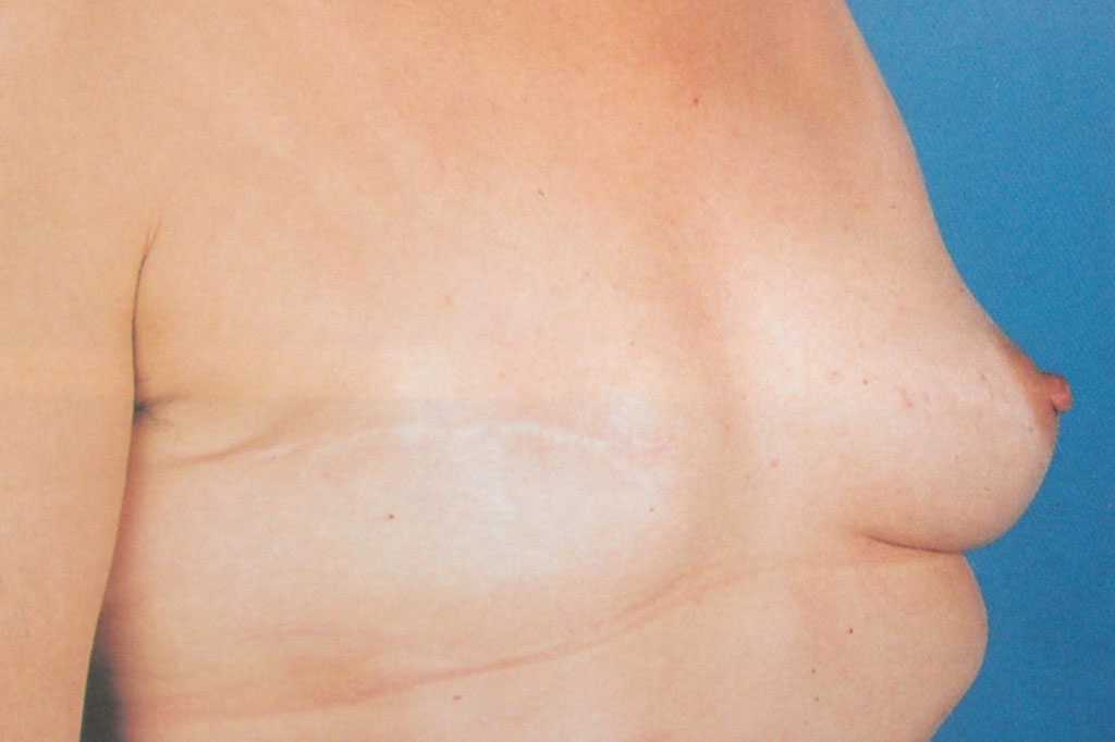 Breast Reconstruction after mastectomy before profile