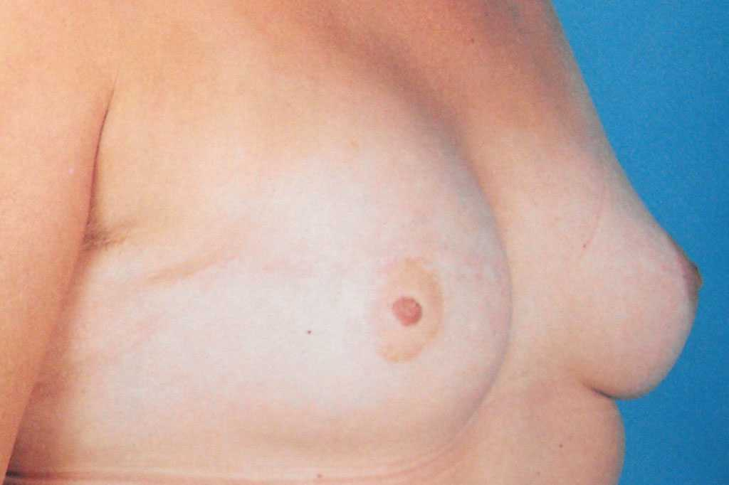 Breast Reconstruction after mastectomy after profile
