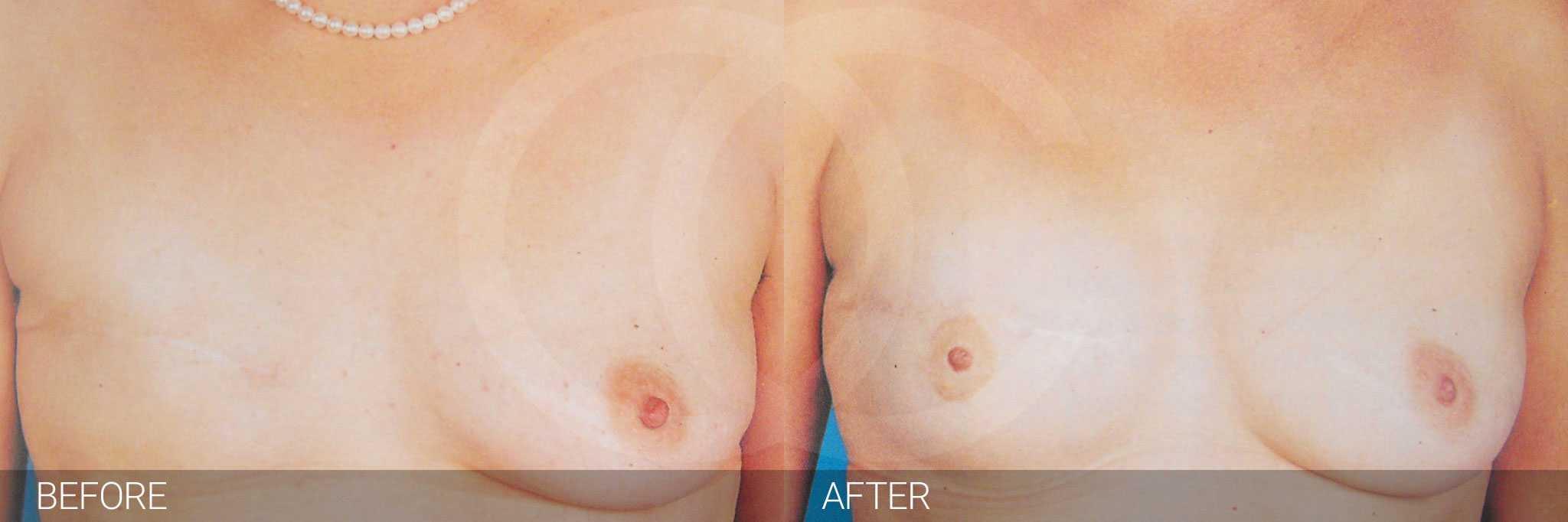 Reconstrucción mamaria después mastectomía ante/post-op I