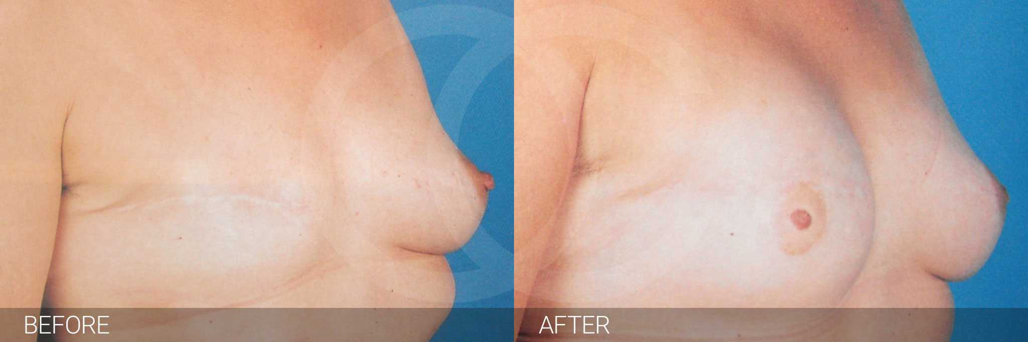 Reconstrucción mamaria después mastectomía ante/post-op III