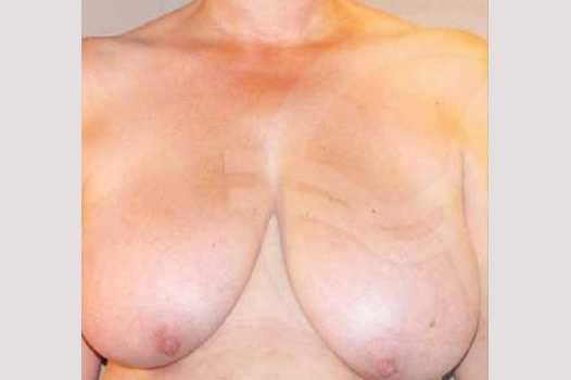 Breast Reduction BREAST LIPOSUCTION before forntal