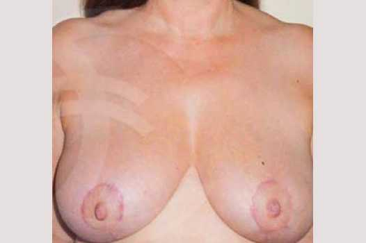 Breast Reduction BREAST LIPOSUCTION after frontal