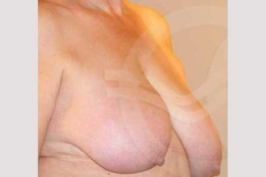 Breast Reduction BREAST LIPOSUCTION before side