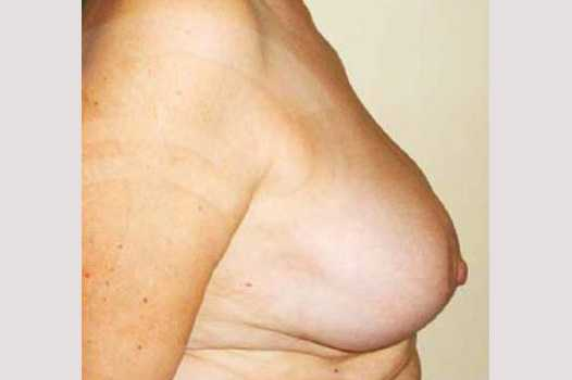 Breast Reduction BREAST LIPOSUCTION after profile