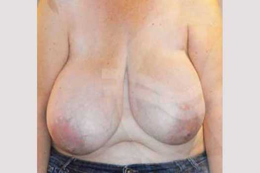 Breast Reduction VOLUME REDUCTION before forntal