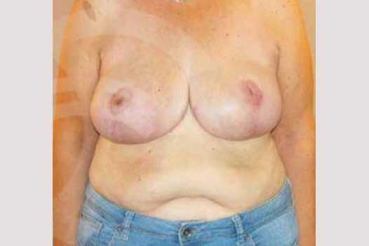 Breast Reduction VOLUME REDUCTION after frontal