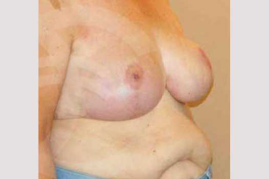 Breast Reduction VOLUME REDUCTION after side